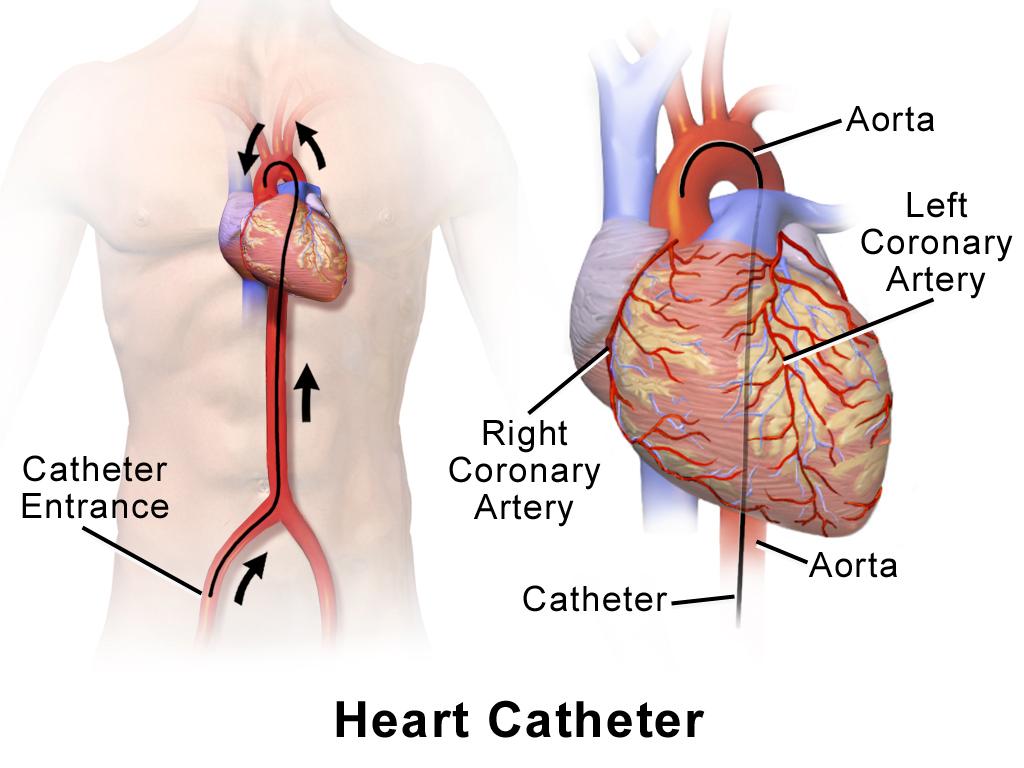 Иллюстрация, изображающая сердечный катетер