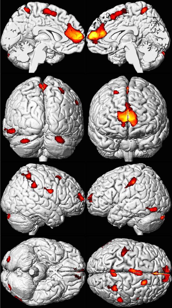 Мозг взрослых