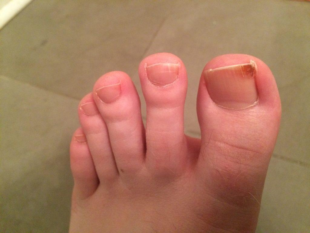 вросший ноготь на большом пальце левой ноги