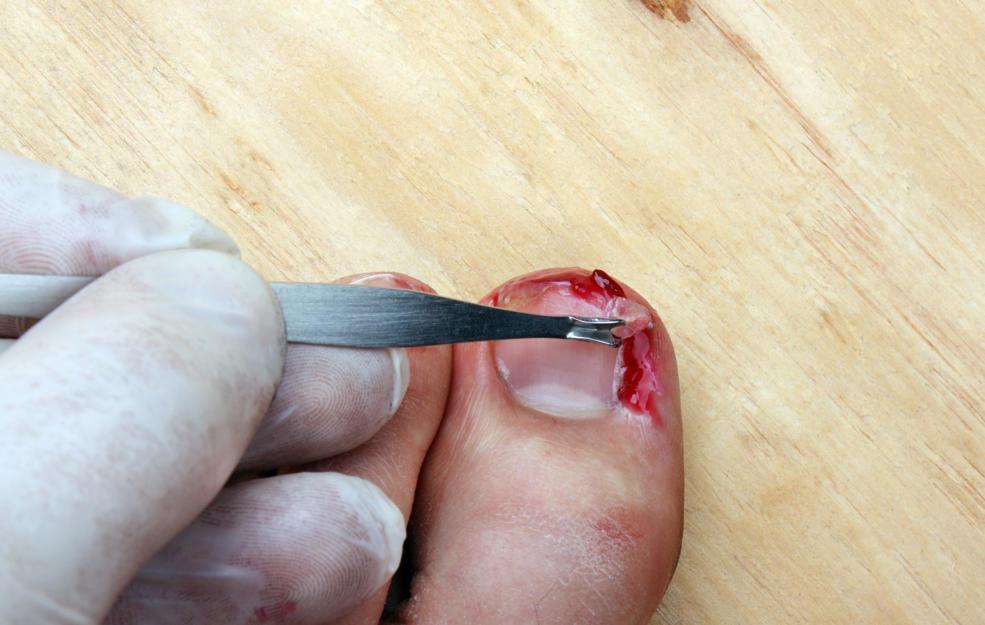 Удаление вросшего ногтя на большом пальце левой ноги