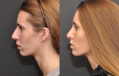 Пластика носа делает его женственнее