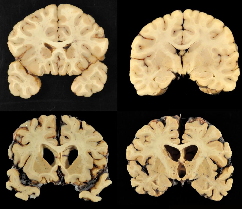 мозг бывшего футболиста