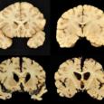 Хроническая травматическая энцефалопатия