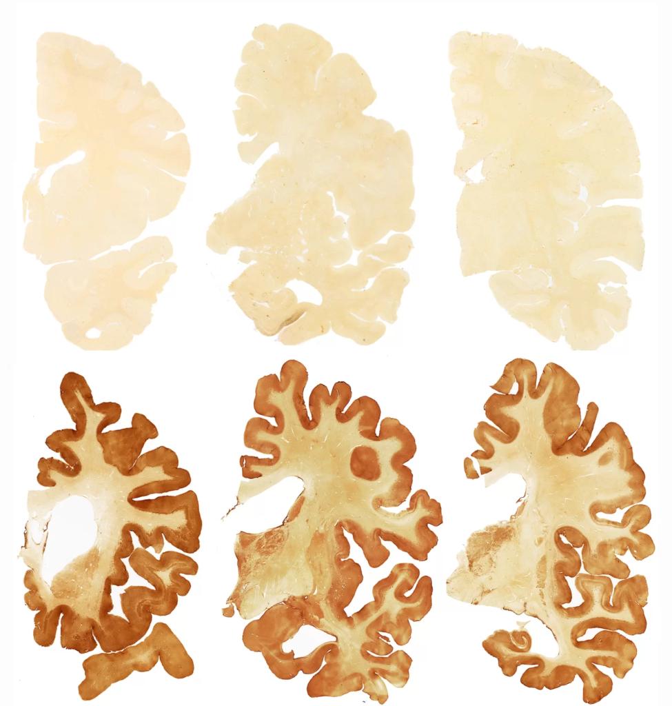 Окрашивание выявляет тау-белок в мозге