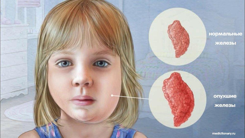 Нормальные и опухшие железы