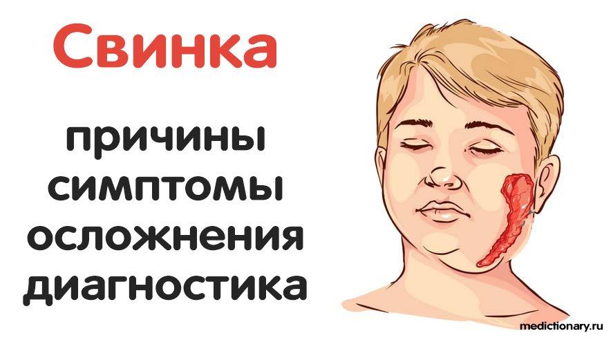 Свинка - причины, симптомы, осложнения, диагностика