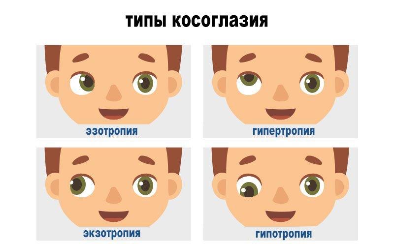 типы косоглазия