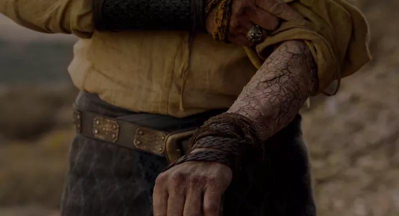 Больная рука Джораха