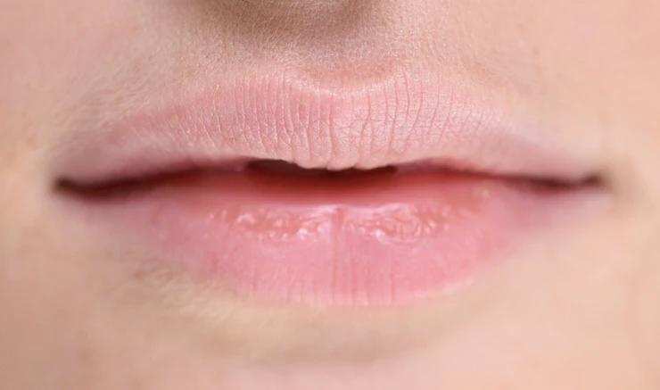 Трескаются губы летом