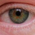 Почему краснеют глаза