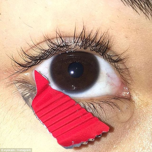 Острый предмет у глаза