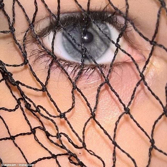 Глаз покрыт сеткой
