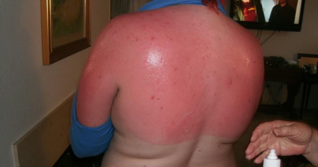 обгоревшая спина