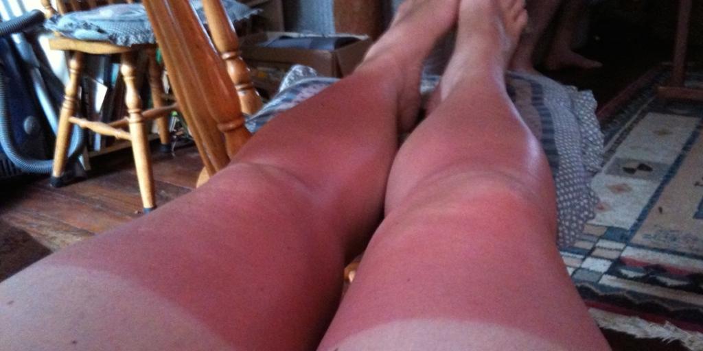 красные от солнца ноги