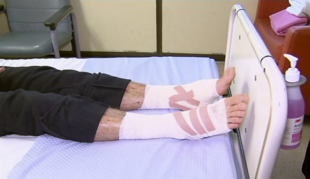 пострадавшие ноги