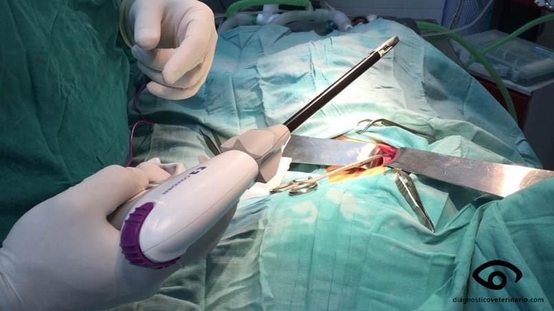 Удаление геморроидальных узлов аппарат ligasure