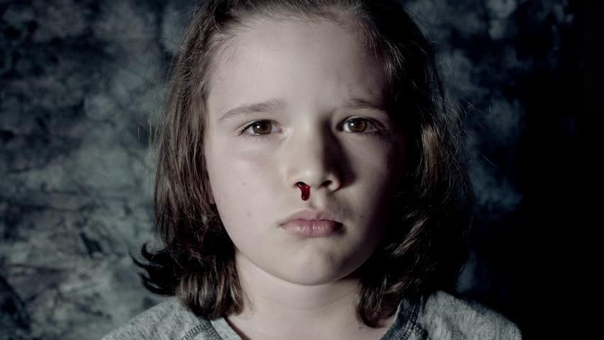 Почему возникают носовые кровотечения