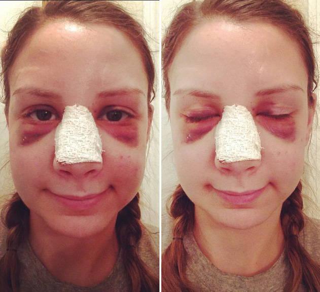 после операции по устранению искривления носовой перегородки