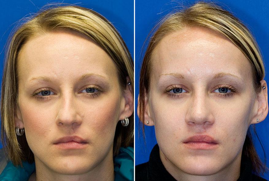 Искривление носовой перегородки до и после