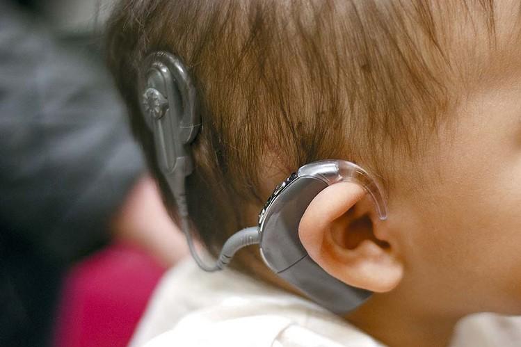 кохлеарный имплантат у ребенка