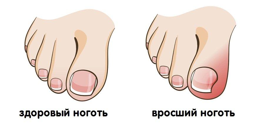 здоровый ноготь и вросший ноготь