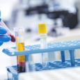 Рак можно диагностировать по анализу крови