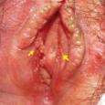 Чем лечить кондиломы вульвы?