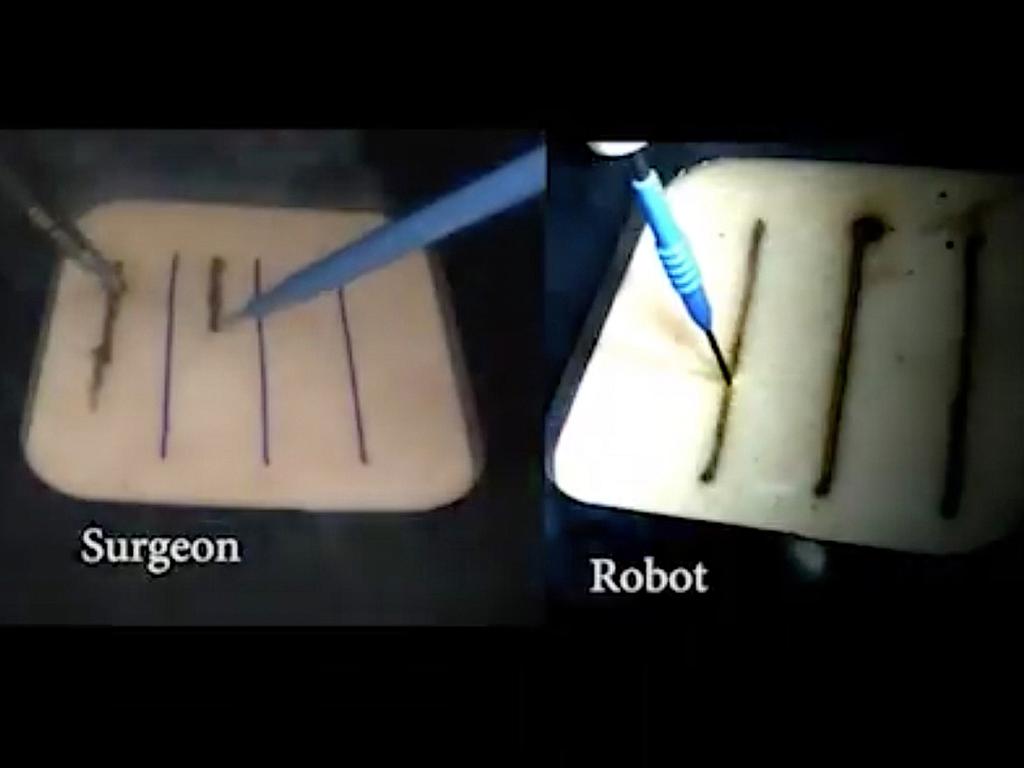 Smart Tissue Autonomous Robot