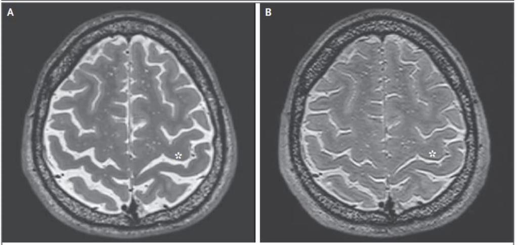 МРТ головного мозга космонавта