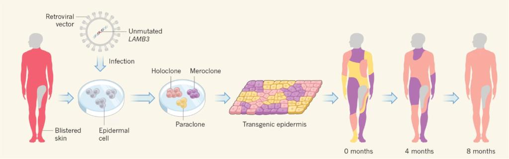 Ученые использовали генную терапию