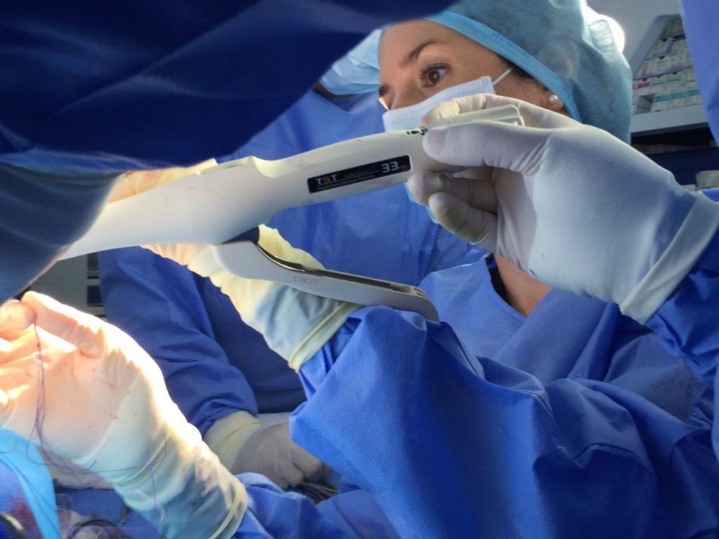 Хирургические варианты лечения геморроя