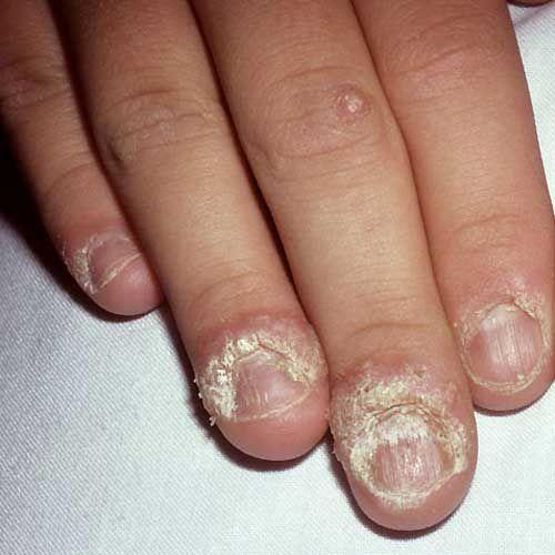 Бородавки вокруг ногтей