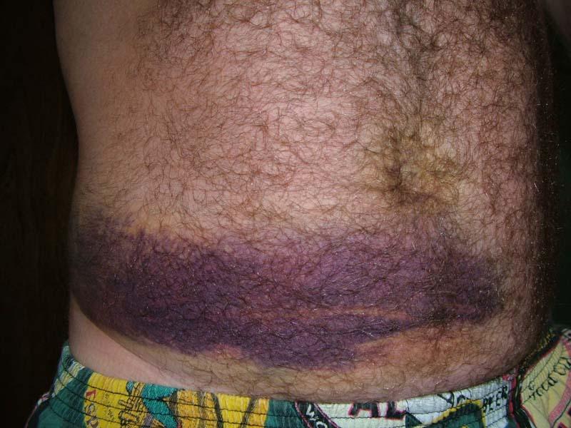 растяжение брюшных мышц с синяком