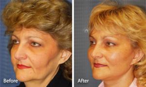 Подтяжка лица, глаз, бровей и увеличение губ