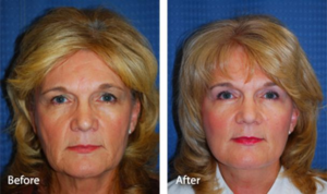 Подтяжка лица, блефаропластика, подтяжка бровей и липосакция подбородка