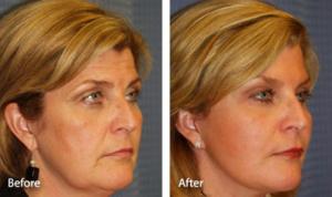 Подтяжка лица, глаз, бровей, липосакция подбородка и перенос жира