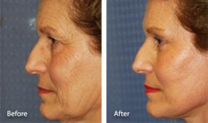 Нижняя подтяжка лица, блефаропластика и подтяжка