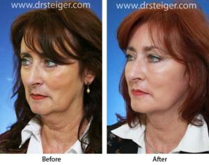 Глубокая подтяжка лица с околоротовой дермабразией