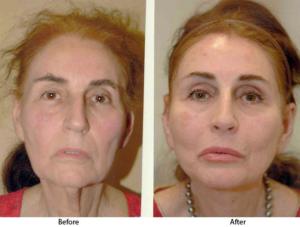 Подтяжка лица, подтяжка шеи и увеличение губ