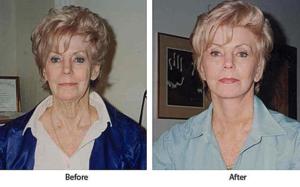 Подтяжка лица, платизмапластика и увеличение губ