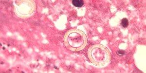 Симптомы свиного цепня