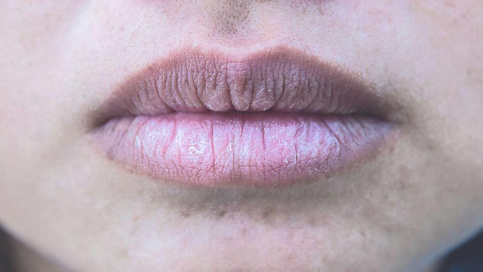 губы начинают шелушиться и трескаться