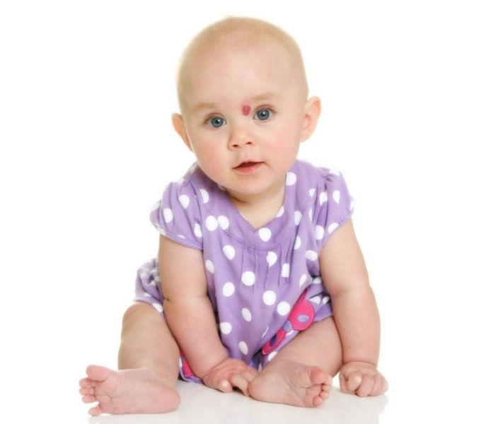 Гемангиома у глаза ребенка