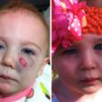 Гемангиома на щеке у ребенка