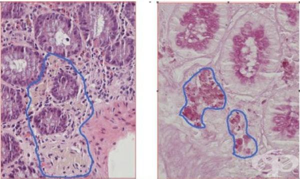Иммунодефицитные синдромы, связанные с дефектом фагоцитоза