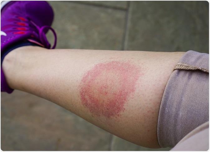 развитие инфекции на коже после укуса клеща
