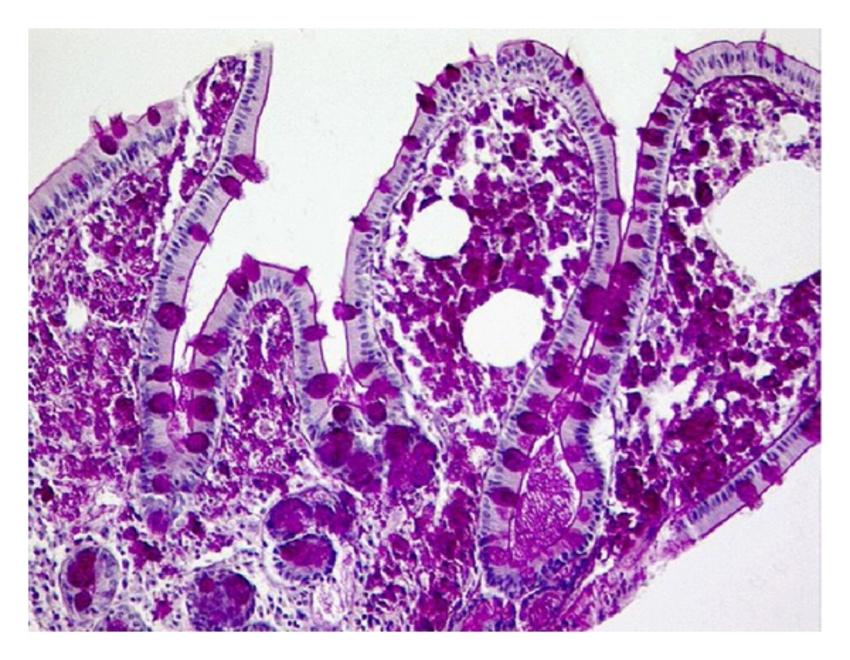 PAS-положительные макрофаги