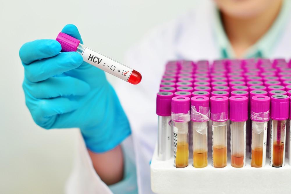 Когда делать тест на гепатит C