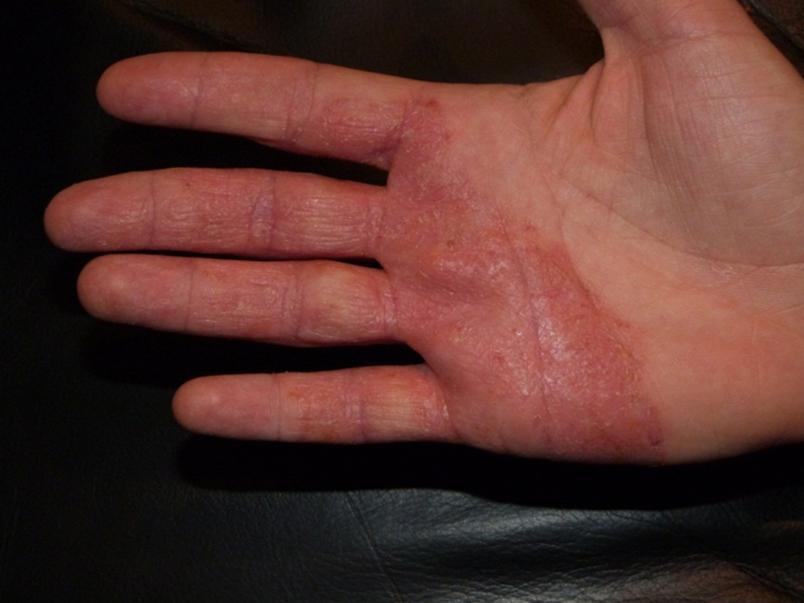 Атопический дерматит до фототерапии