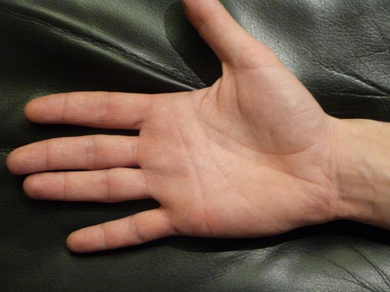 Атопический дерматит после фототерапии